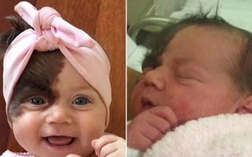 Το μωρό με το σημάδι στο πρόσωπο θα μπει στο χειρουργείο επτά φορές
