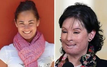 Γενναίο θύμα επίθεσης με οξύ αποκάλυψε το πρόσωπό της