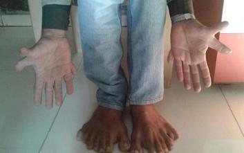 Ο άνθρωπος με τα περισσότερα δάχτυλα στον κόσμο