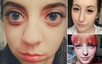 Η νέα σοκαριστική μόδα στις γυναίκες για μεγάλα μάτια