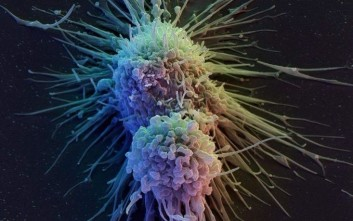 Τεστ αίματος ανιχνεύει τον καρκίνο ένα χρόνο πριν από τις ακτινογραφίες και τις τομογραφίες