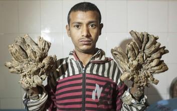 Στο χειρουργείο ο «άνθρωπος-δέντρο» του Μπαγκλαντές