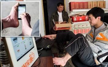 Ο 27χρονος που γεννήθηκε χωρίς χέρια και έγινε online επιχειρηματίας