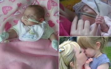 Μωρό γεννήθηκε πρόωρα και κατόρθωσε να επιζήσει με τη βοήθεια... Viagra