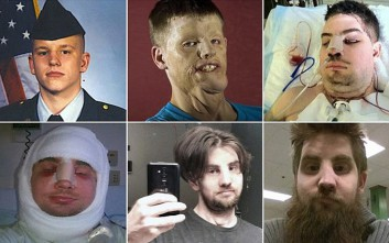 Ο άνδρας που έχασε το πρόσωπό του από 10.000 Βολτ μιλά πέντε χρόνια μετά τη μεταμόσχευση