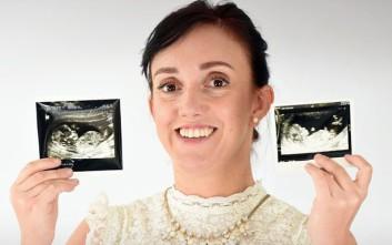 Η 31χρονη γεννημένη με δύο κόλπους και μήτρες μιλά για την απόκτηση των παιδιών της