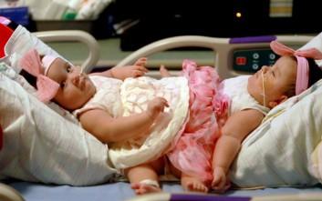 Διαχωρίστηκαν σιαμαία κοριτσάκια που γεννήθηκαν από τρίδυμη κύηση