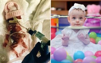 Η μικροσκοπική αγωνίστρια που γεννήθηκε μισό κιλό και χθες έσβησε το πρώτο της κεράκι
