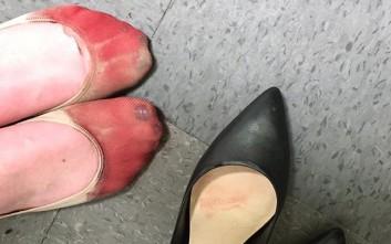 Τα ματωμένα πόδια μιας σερβιτόρας που καλείται να φορέσει τακούνια στη δουλειά