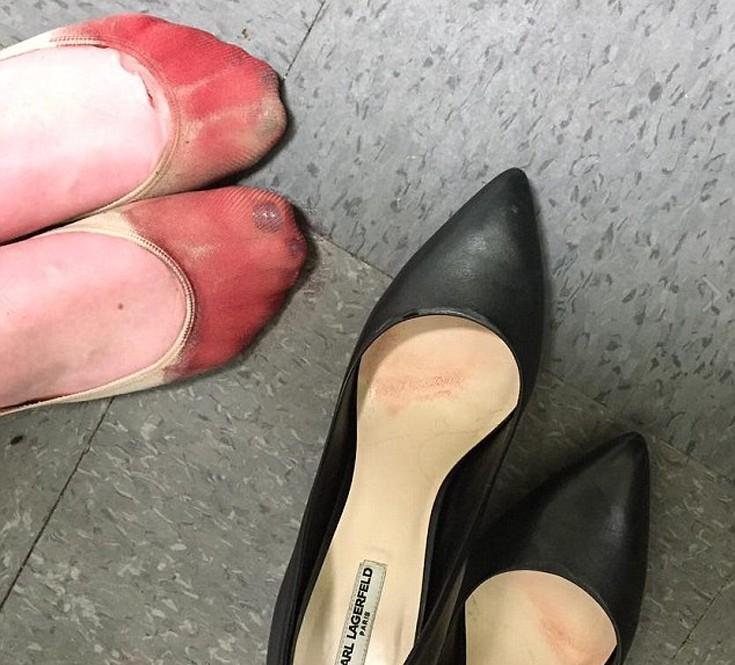 59613df21703 Τα ματωμένα πόδια μιας σερβιτόρας που καλείται να φορέσει τακούνια ...