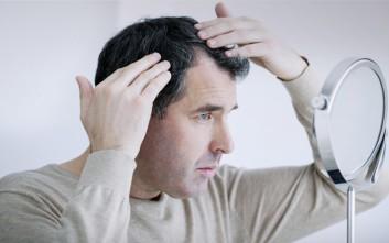Καταρρίπτονται οι μύθοι για τη φαλάκρα