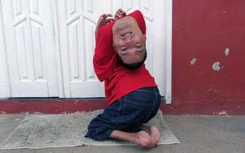 Ο άνδρας που έχει το κεφάλι του ανάποδα αποδεικνύει πως η θέληση δεν έχει όρια