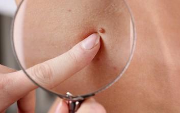 Νέα στοιχεία για τον καρκίνο του δέρματος