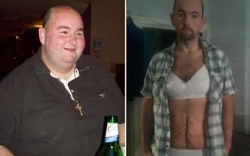 Έχασε 158 κιλά και αναγκάζεται να φορά γυναικεία εσώρουχα για να συγκρατεί το δέρμα του