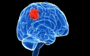 Γιατί οι γυναίκες αντιδρούν καλύτερα στη θεραπεία για καρκίνο του εγκεφάλου