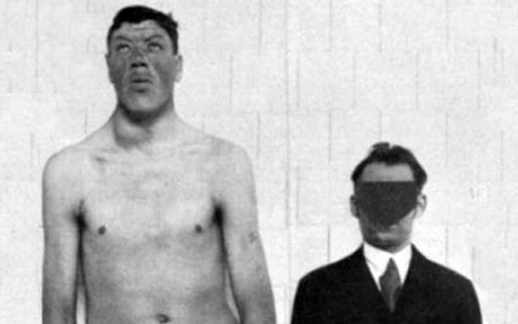 Ο άνθρωπος που ξεκίνησε τη ζωή του ως νάνος και πέθανε ως γίγαντας
