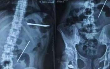 Έφηβος παραπονιόταν για πονόκοιλο και δεν πίστευαν αυτό που βρήκαν στην κοιλιά του