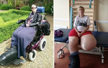 Η γυναίκα με τα πόδια που ζύγιζαν 107 κιλά μιλάει για τη συρρίκνωσή τους μετά από 40 χρόνια