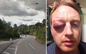 Το φριχτό τραύμα ποδηλάτη από αυγό που πετάχτηκε από διερχόμενο αυτοκίνητο