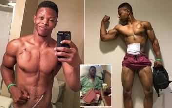 Ο bodybuilder που ζει με την καρδιά... σε ένα σακίδιο!