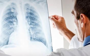 Για ποιους αυξάνεται έως 153% ο κίνδυνος να πυροδοτηθεί καρκίνος από τις ακτινογραφίες