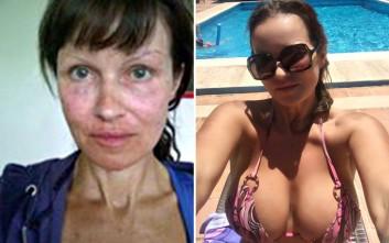 Η 52χρονη που έχει εθιστεί στις πλαστικές επεμβάσεις