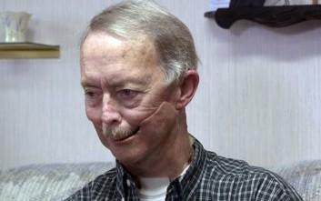 Άντρας που έχασε σχεδόν το μισό του πρόσωπο αποκτά νέο σαγόνι από 3D εκτυπωτή
