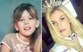 Την φώναζαν ανορεξική στο σχολείο και τώρα έγινε «βασίλισσα της ομορφιάς»