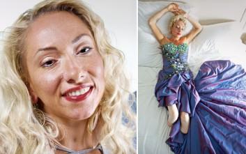 Η γυναίκα που παραλίγο να πεθάνει από μηνιγγίτιδα και έγινε μοντέλο