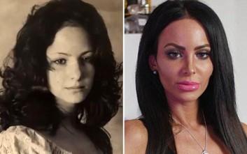 Ξόδεψε χιλιάδες λίρες σε πλαστικές για να μην μοιάζει στη μητέρα της