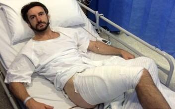 Βρετανός ποδηλάτης δείχνει πώς έγινε το πόδι του μετά από «έκρηξη» iPhone