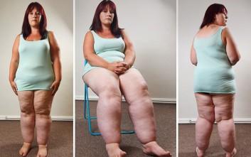 Η 29χρονη με τα πόδια που ζυγίζουν 50 κιλά