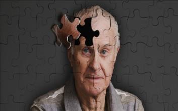 Φάρμακο δίνει ελπίδες για την αντιμετώπιση του Αλτσχάιμερ
