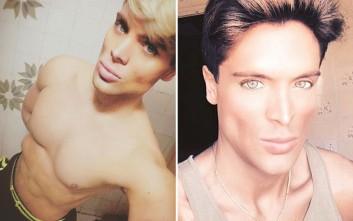 Ο Βραζιλιάνος που αφαίρεσε δύο πλευρά για να μοιάζει... στον φίλο της Barbie