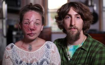Νεαρή μητέρα «αφαίρεσε το μισό της πρόσωπο» για να μην πεθάνει