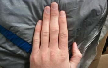 Θεσσαλονίκη: 15χρονος απέκτησε και πάλι τα δάχτυλα του δεξιού του χεριού