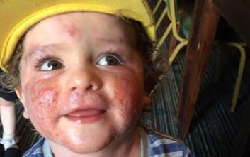 Ο τρίχρονος που ζει σαν «σύγχρονος λεπρός» εξαιτίας ενός εκζέματος