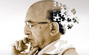 Ενδείξεις ότι το Αλτσχάιμερ μπορεί να μεταδοθεί στους ανθρώπους