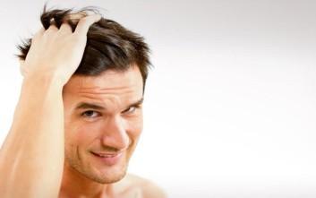 Μεταμόσχευση μαλλιών, τα τρία στοιχεία που πρέπει να προσέξετε