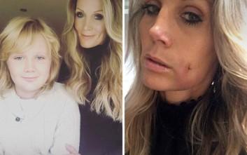 Μητέρα ζήλεψε τον γιο της και έκανε λακκάκια στα μάγουλα