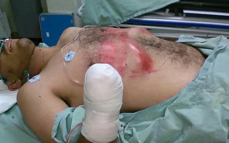 Πολίτες έπιασαν κλέφτη επ' αυτοφώρω και του έκοψαν το χέρι