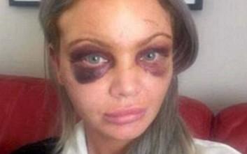 Μεθυσμένη μητέρα έβγαλε την οργή της σε άγνωστο άτομο