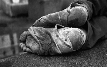 Ο νεαρός «καλτσάνθρωπος» των αστέγων