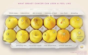 Δώδεκα συμπτώματα του καρκίνου του μαστού όπως θα φαίνονταν σε... λεμόνια