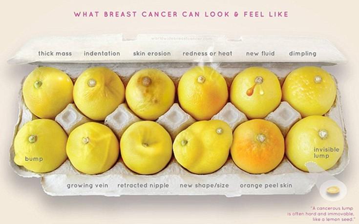 Δώδεκα συμπτώματα του καρκίνου του μαστού όπως θα φαίνονταν σε… λεμόνια