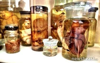 Σκληρές εικόνες από τα εκθέματα του -άγνωστου- Εγκληματολογικού Μουσείου