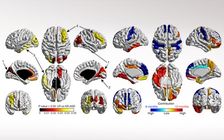 Αλγόριθμος διαβάζει τον εγκέφαλο των βρεφών και προβλέπει τον αυτισμό
