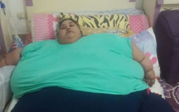 H πιο παχύσαρκη γυναίκα στον κόσμο έπεσε από τα 500 στα 400 κιλά