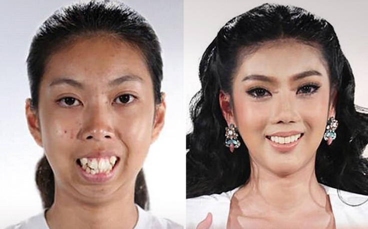 Ένα 19χρονο κορίτσι πριν και μετά τις πλαστικές επεμβάσεις