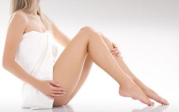 Κιρσοί κάτω άκρων, τέλεια πόδια για το καλοκαίρι με αναίμακτες θεραπείες laser